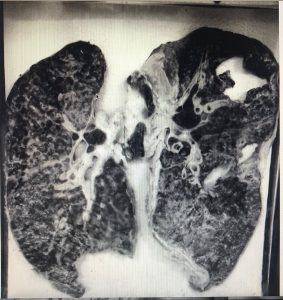 TB Lungs